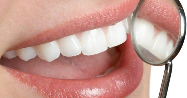 Receitas naturais para manter boca e gengivas saudáveis