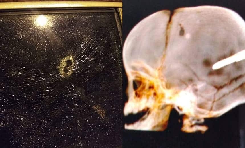 Resultado de imagem para bebê de 10 meses que teve crânio perfurado por prego