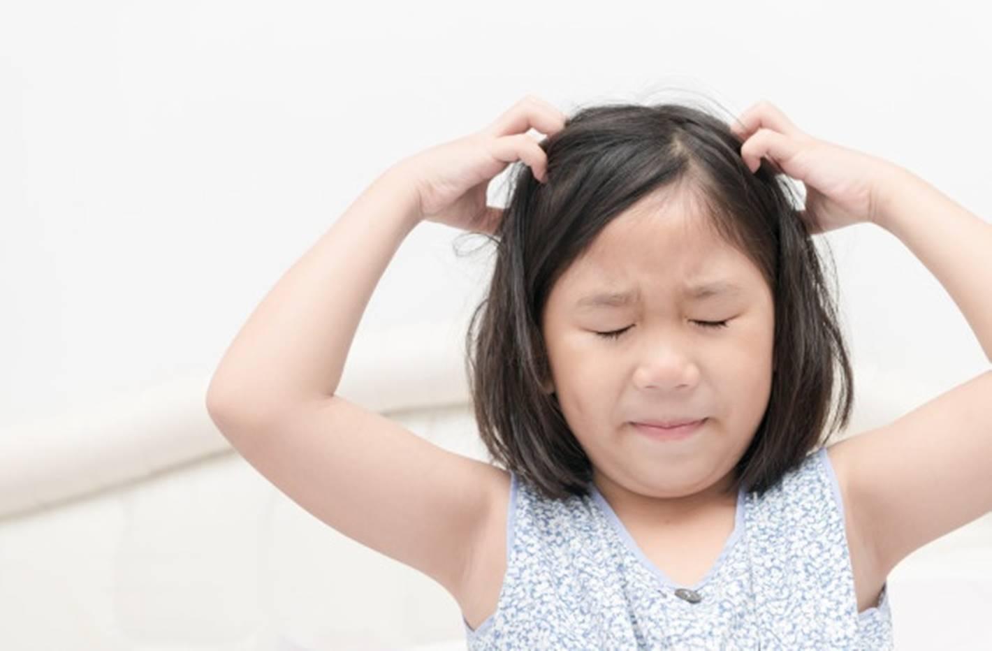 Prepare esta infusão de arruda para remover os piolhos e lêndeas do cabelo