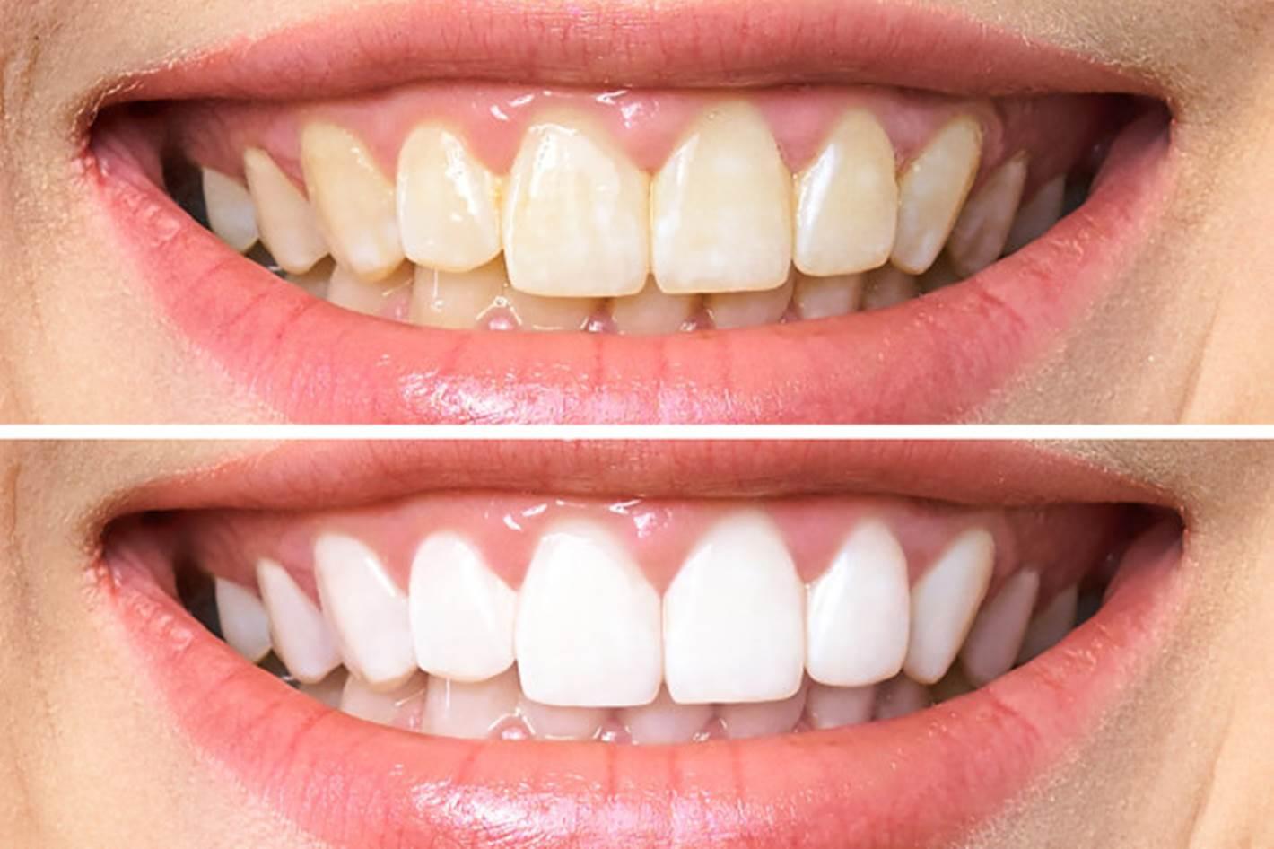 Coloque estes truques em prática e tenha um sorriso  radiante