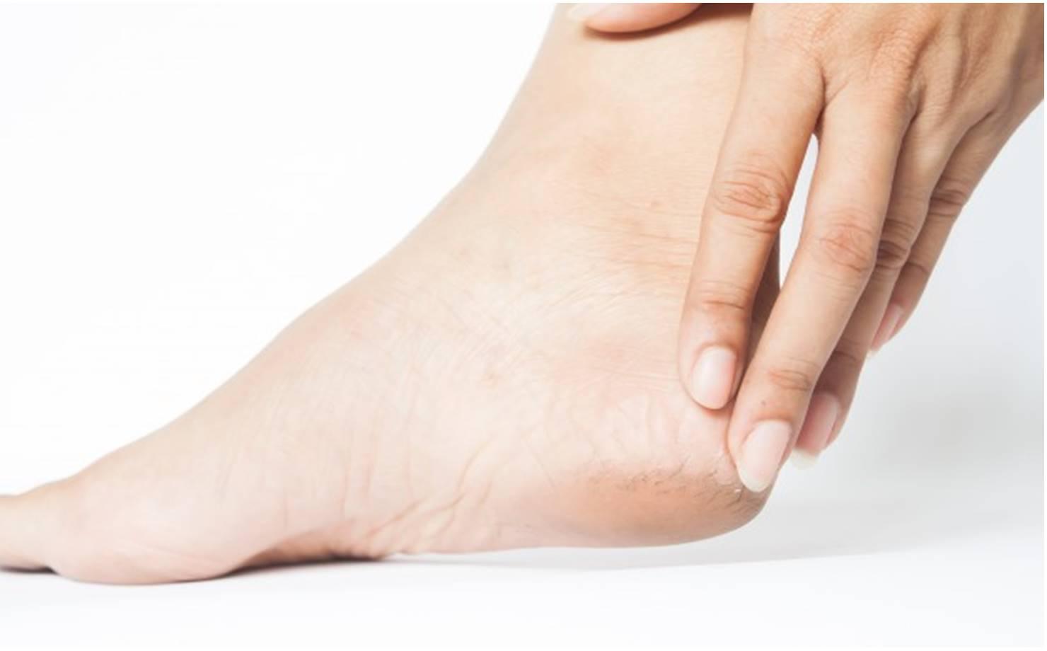 Como usar vaselina para tratar calcanhares rachados