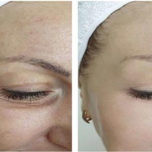 Mulher Mostrando Antes e depois de usar a Máscara