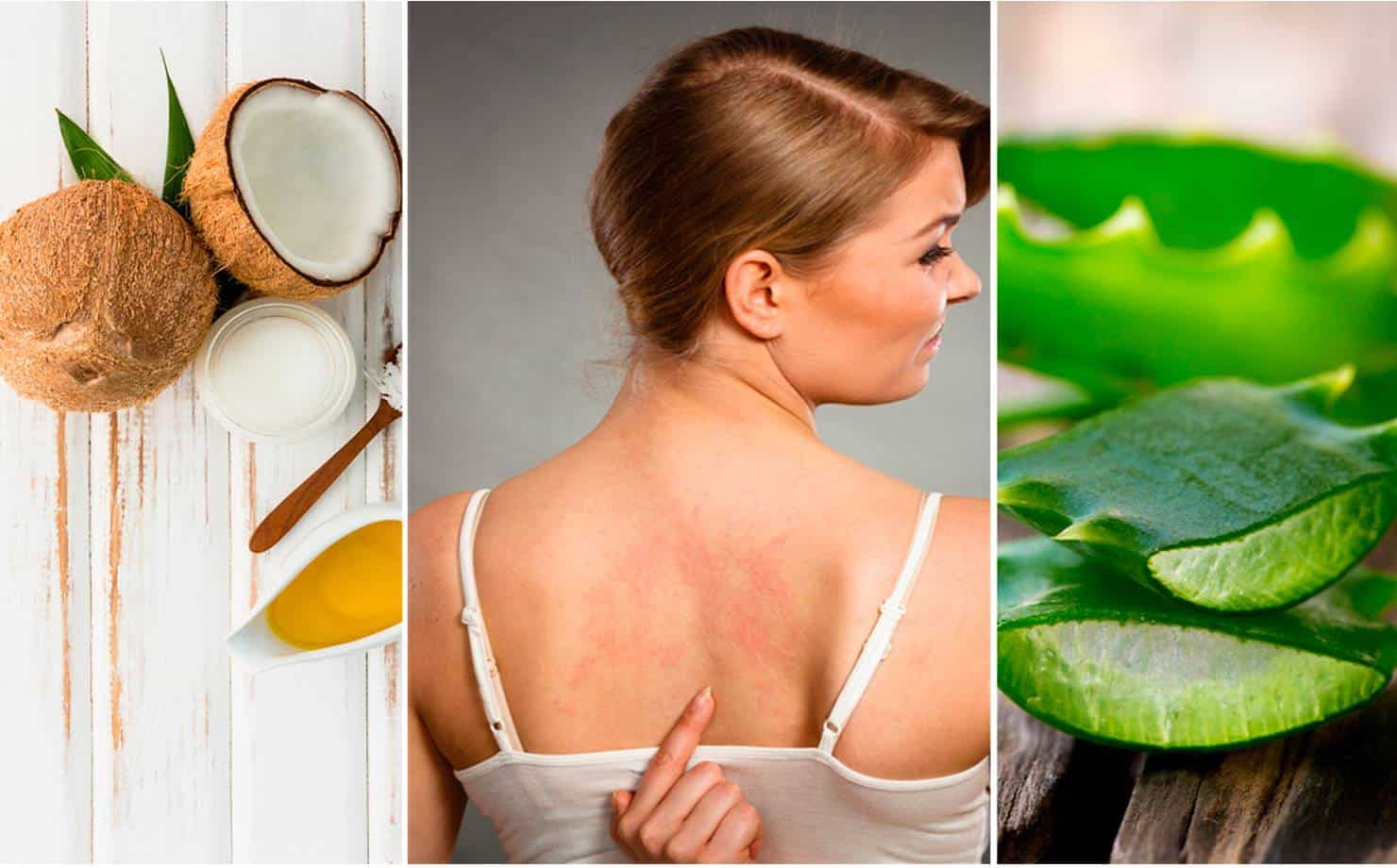Remédios naturais para Alergias na Pele